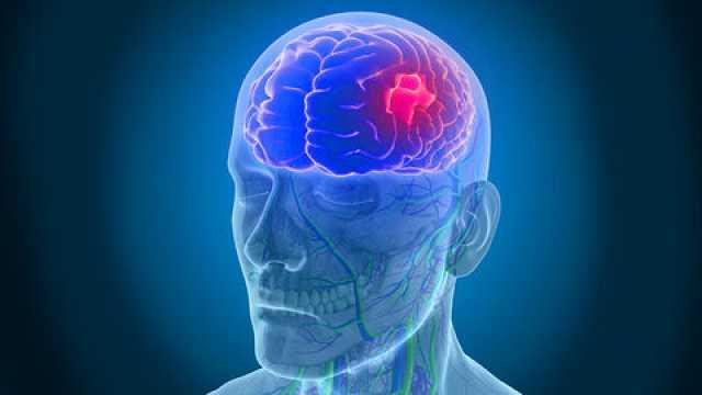 صدای بلند سکته مغزی در جامعه را بشنوید/ افزایش مرگ و میر سکته مغزی در زمان کرونا