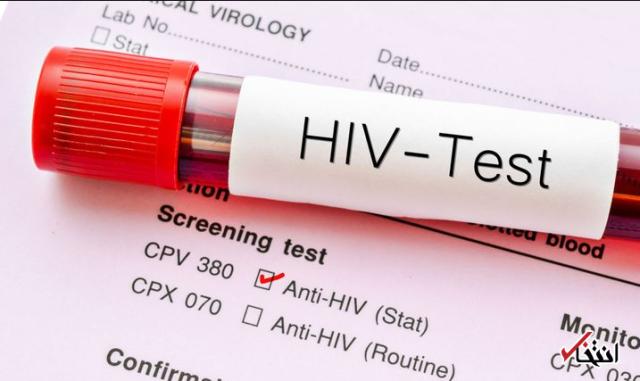 دارویی جدید برای درمان همیشگی ویروس ایدز ساخته شد