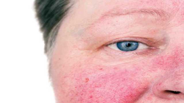 آنچه که از لکههای سمج پوستی یا بیماری رزاسه نمیدانید