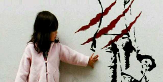 کودک 6 ساله، قربانی کینه زن عمویش شد