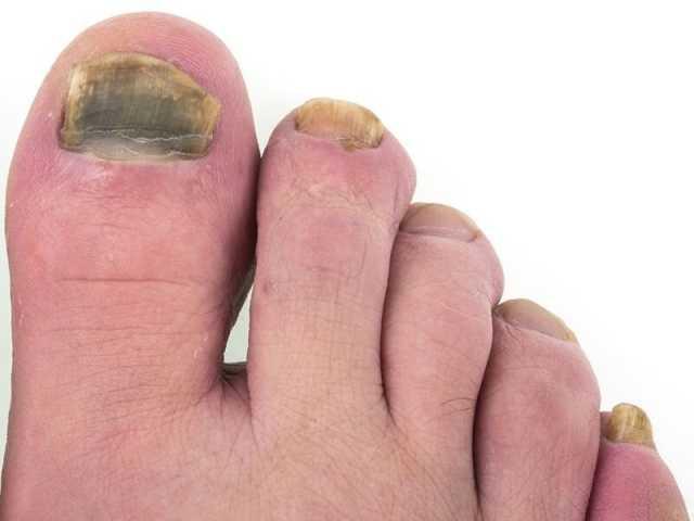 نکته بهداشتی: عفونت قارچی ناخن پا