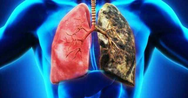 سرطان ریه؛ مهمان ناخوانده سینه