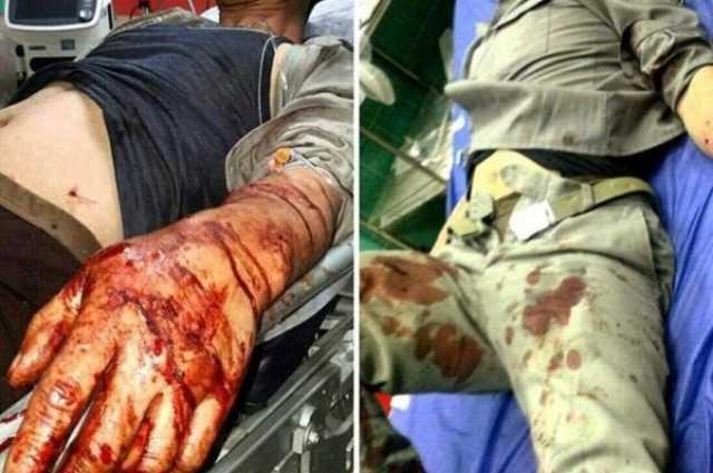 مصدومیت ۵ محیطبان مازندران براثر حمله شکارچیان غیرمجاز