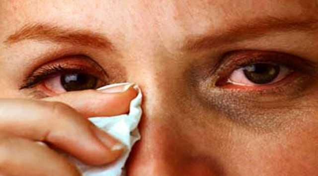 بیماری کموسیس چشمی چیست؟
