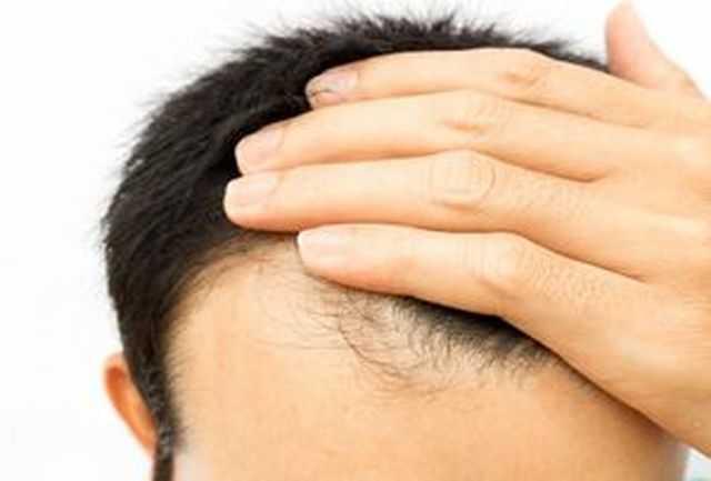 محافظت از سلامت موها در ماه رمضان+ راهکار