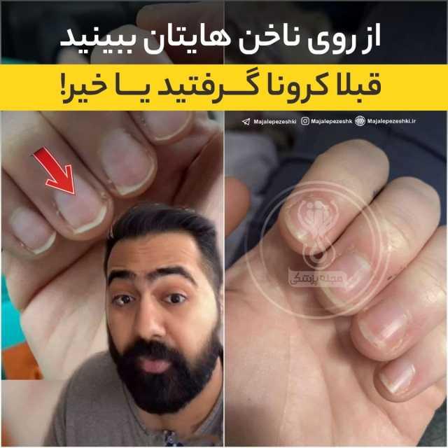 ادعای عجیب یک پزشک؛ از روی ناخنهایتان ببینید قبلاً کرونا گرفتید یا خیر ؟! +عکس